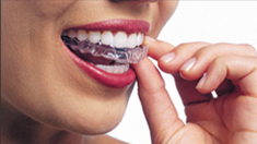Tempe Invisalign Clear Braces