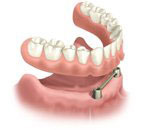 Removable, implant anchored overdenture