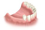 before dental implant bridge treatment
