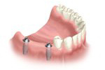 installing the dental implant bridge