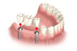 attaching the dental implant bridge