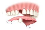 Removable Partial Dentures in Bayside