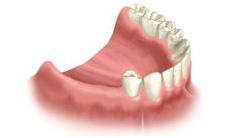 Implant-Dentistry-Woodland-Hills-Multiple-Teeth-Replacement