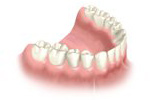 after dental implant bridge treatment
