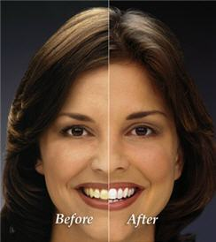 Zoom! Teeth Whitening - Tustin, CA - 360 Dental Services